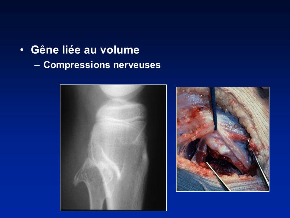 Gêne liée au volume Compressions nerveuses