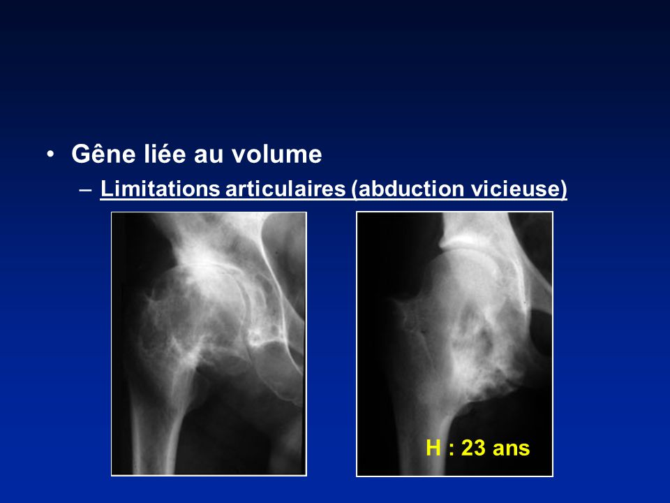 Gêne liée au volume Limitations articulaires (abduction vicieuse)