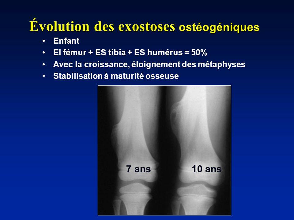 Évolution des exostoses ostéogéniques