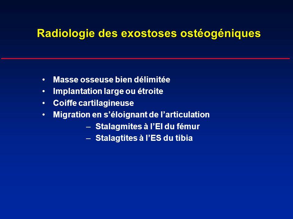 Radiologie des exostoses ostéogéniques