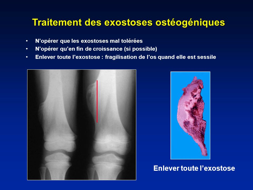 Traitement des exostoses ostéogéniques Enlever toute l'exostose