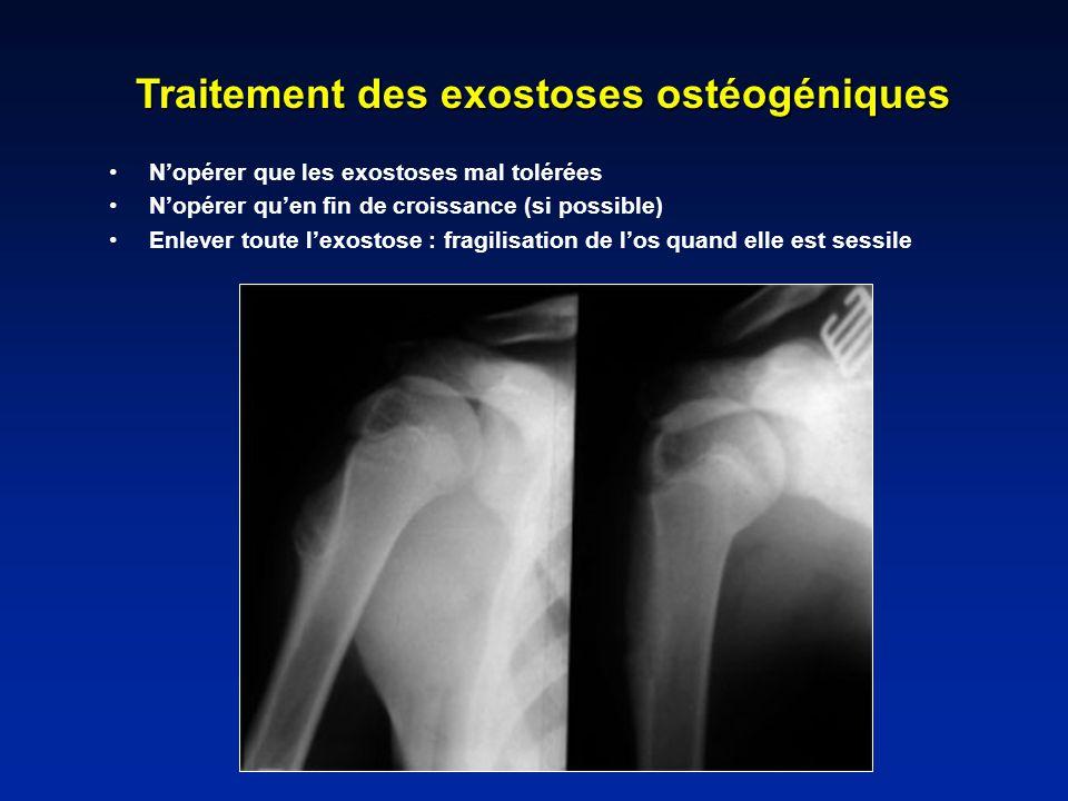 Traitement des exostoses ostéogéniques