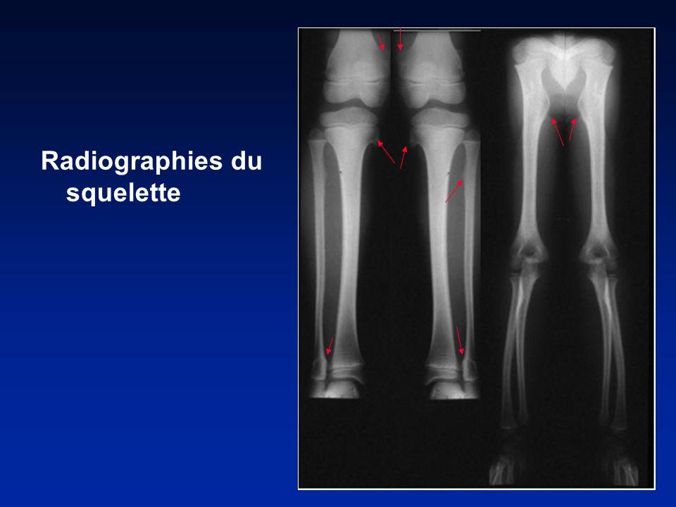Radiographies du squelette