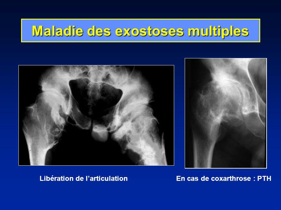Maladie des exostoses multiples