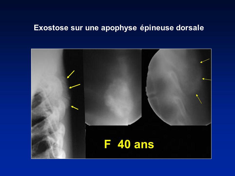 Exostose sur une apophyse épineuse dorsale