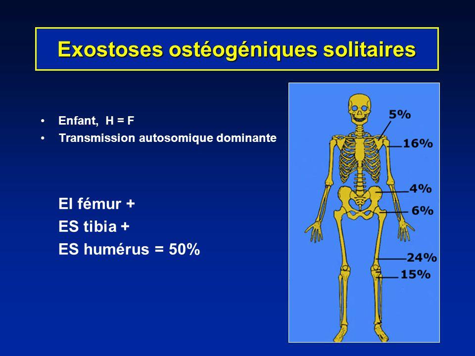 Exostoses ostéogéniques solitaires