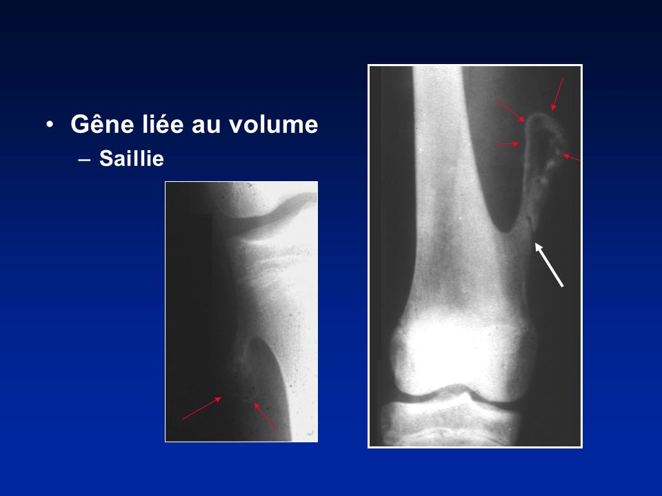 Gêne liée au volume Saillie