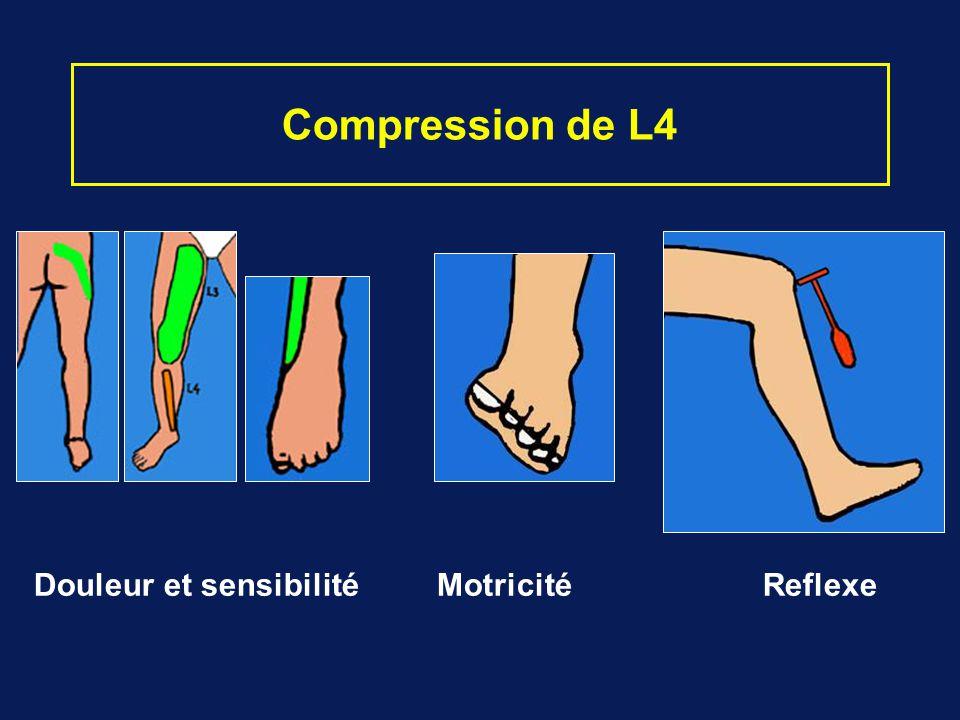 Compression de L4 Douleur et sensibilité Motricité Reflexe