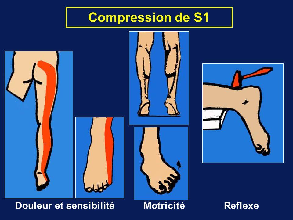 Compression de S1 Douleur et sensibilité Motricité Reflexe