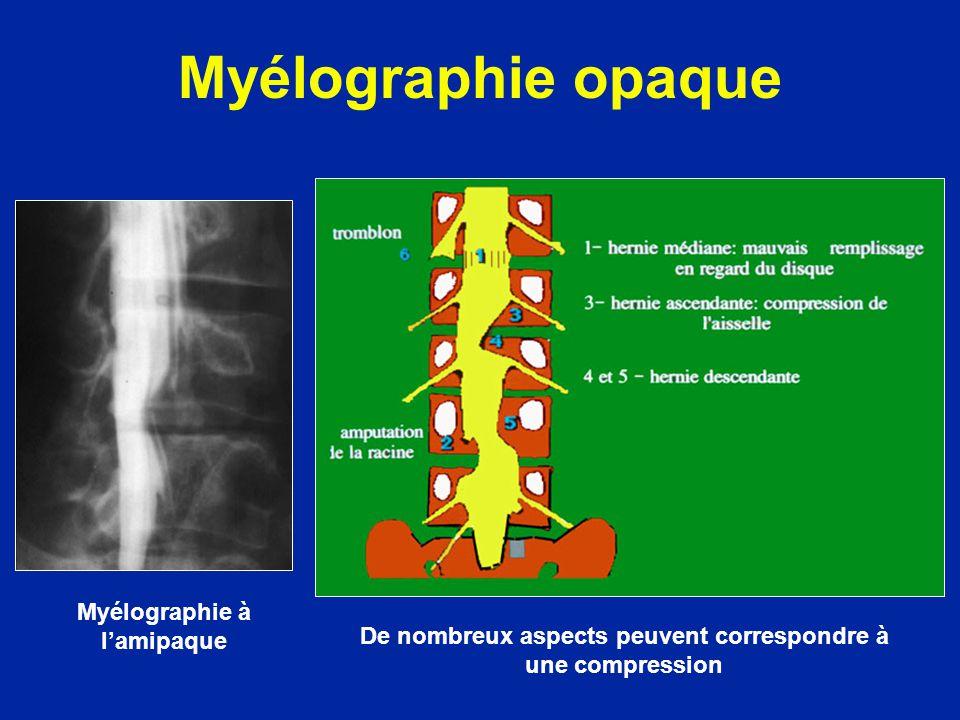 Myélographie opaque Myélographie à l'amipaque