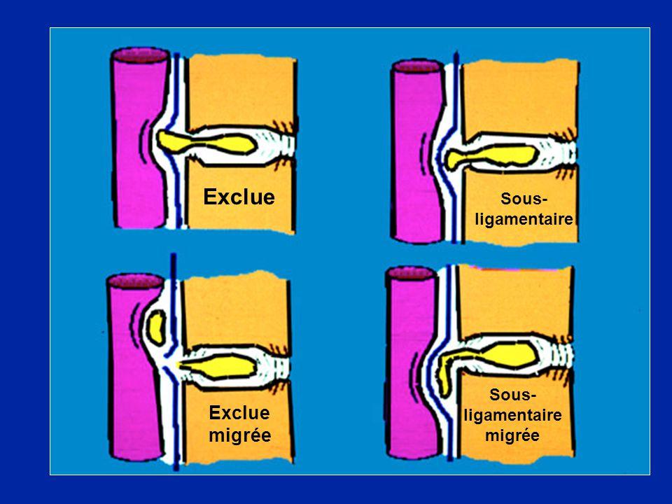 Sous-ligamentaire migrée