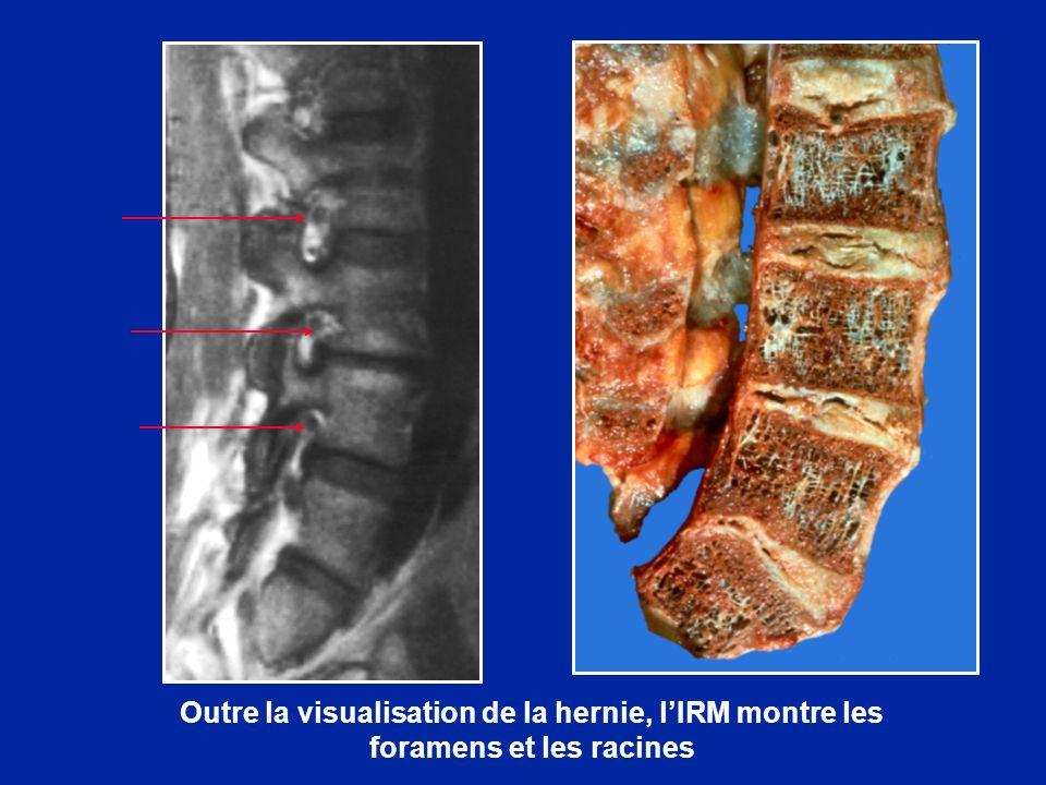 Outre la visualisation de la hernie, l'IRM montre les foramens et les racines