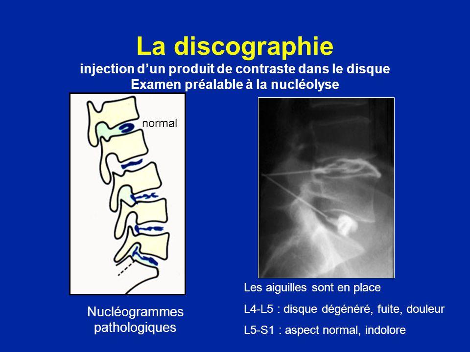 Nucléogrammes pathologiques