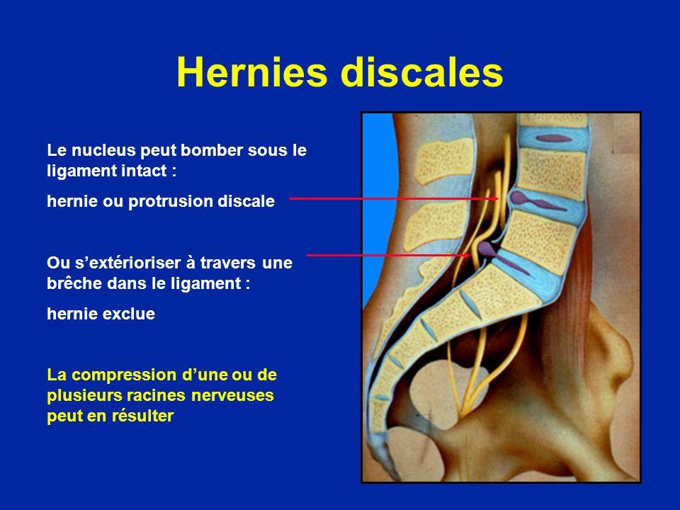Hernies discales Le nucleus peut bomber sous le ligament intact :