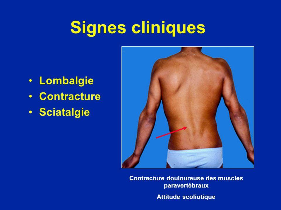 Contracture douloureuse des muscles paravertébraux