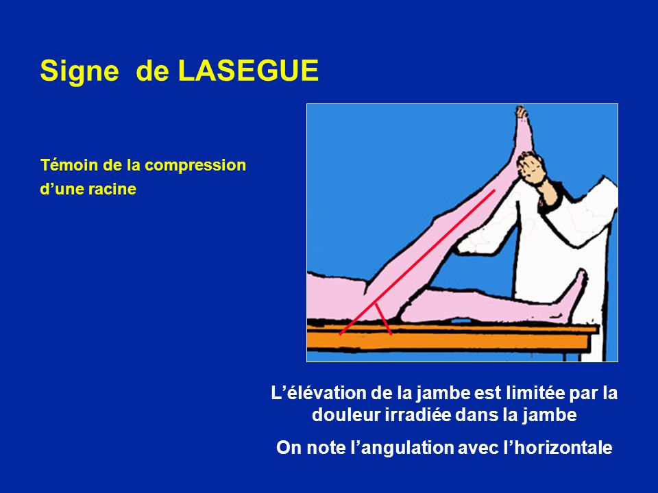 On note l'angulation avec l'horizontale