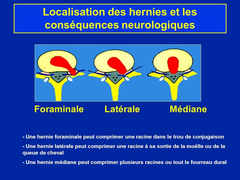 Localisation des hernies et les conséquences neurologiques
