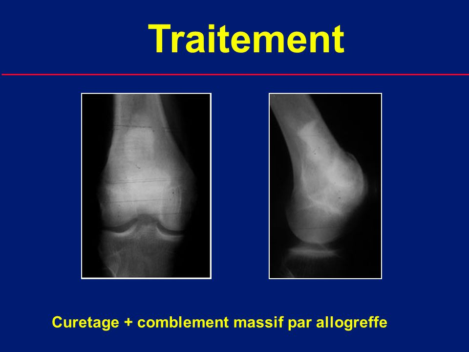 Traitement Curetage + comblement massif par allogreffe