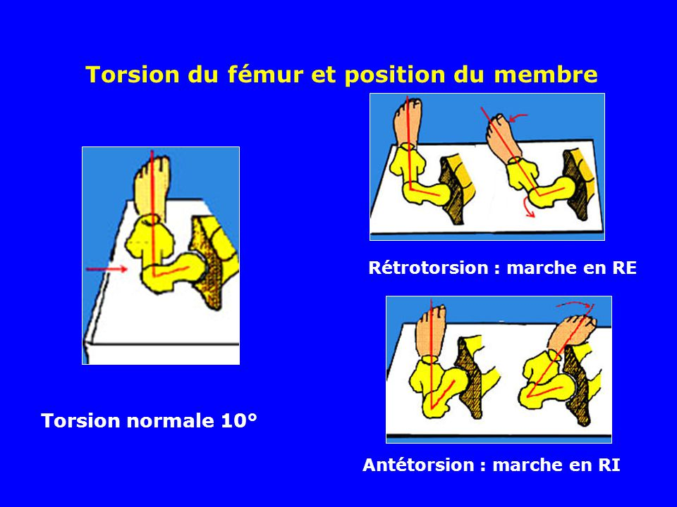 Torsion du fémur et position du membre