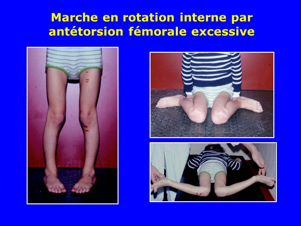 Marche en rotation interne par antétorsion fémorale excessive