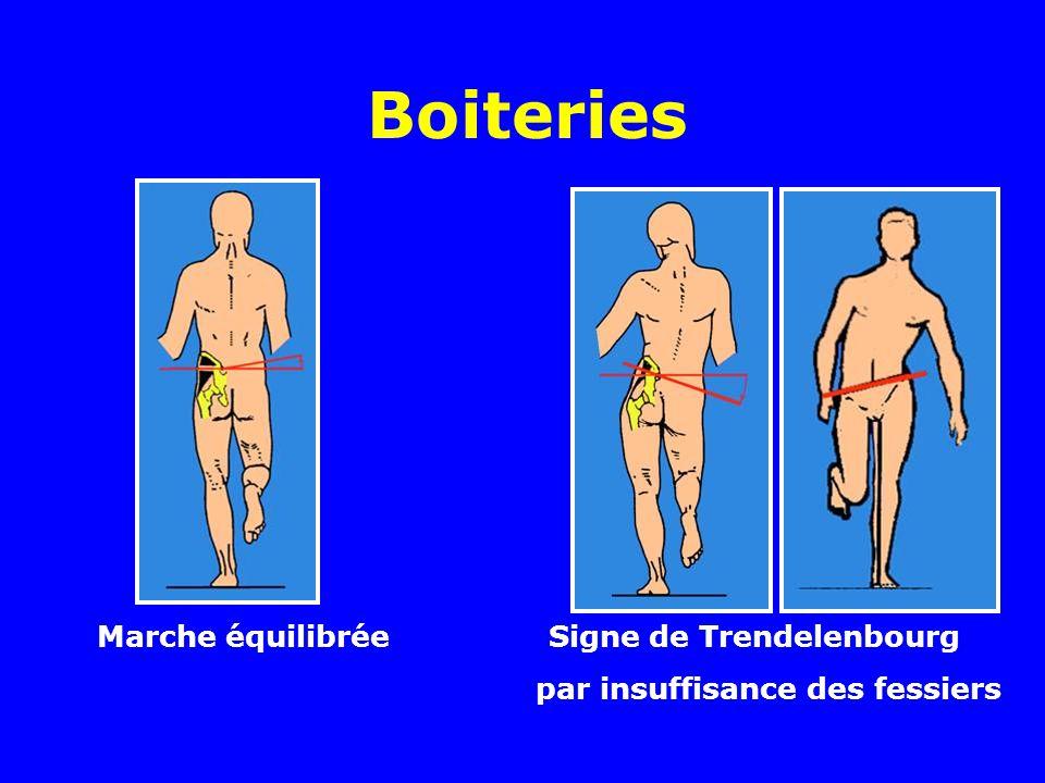 Boiteries Marche équilibrée Signe de Trendelenbourg
