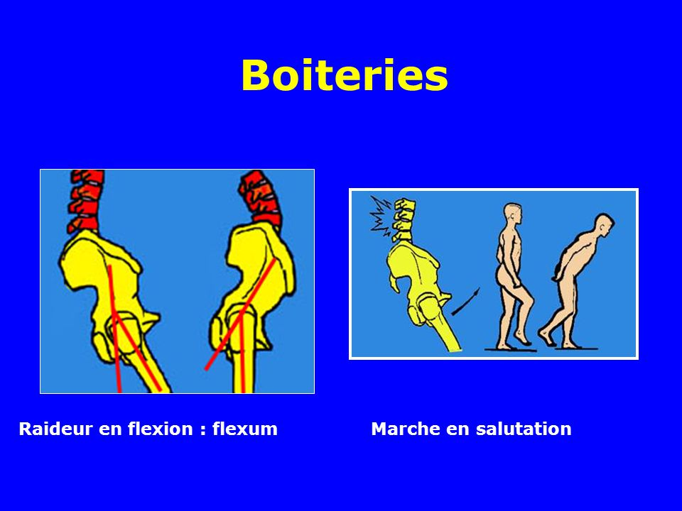 Boiteries Raideur en flexion : flexum Marche en salutation