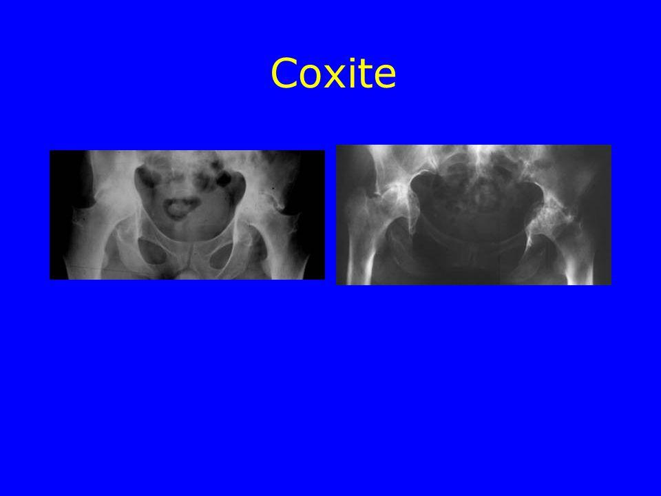 Coxite