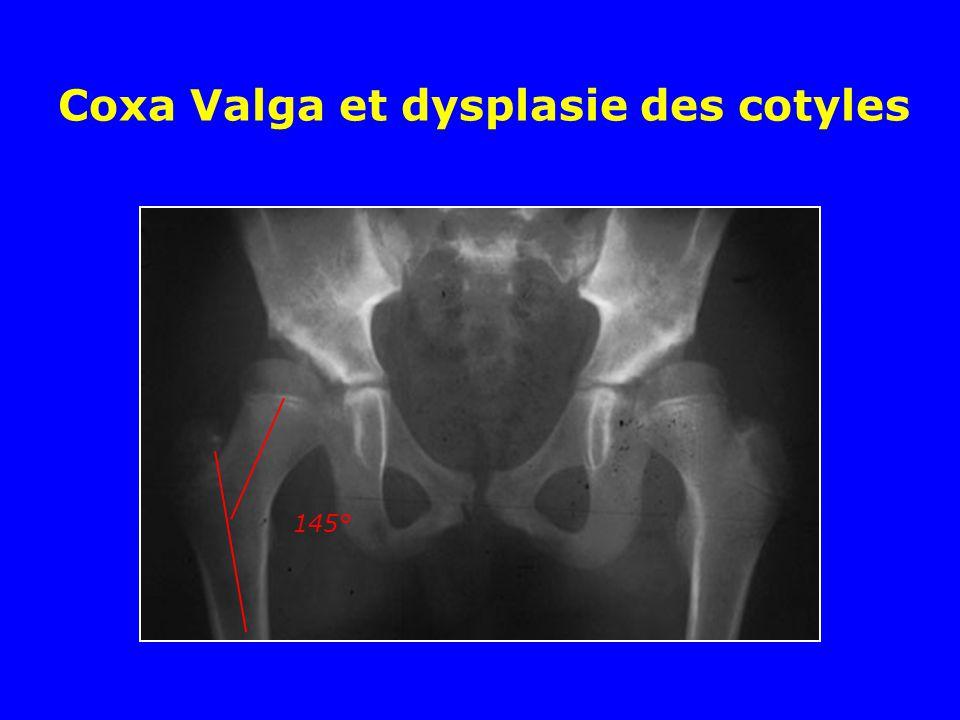 Coxa Valga et dysplasie des cotyles