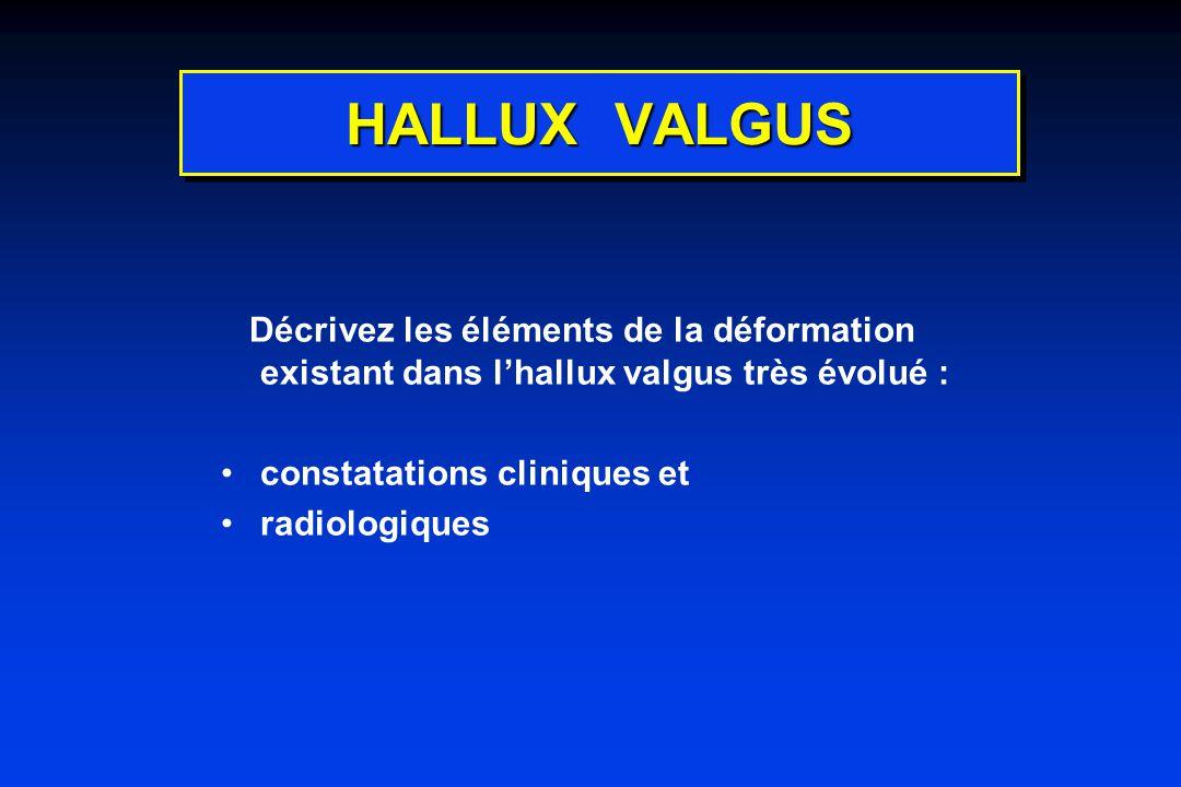 HALLUX VALGUS Décrivez les éléments de la déformation existant dans l'hallux valgus très évolué : constatations cliniques et.