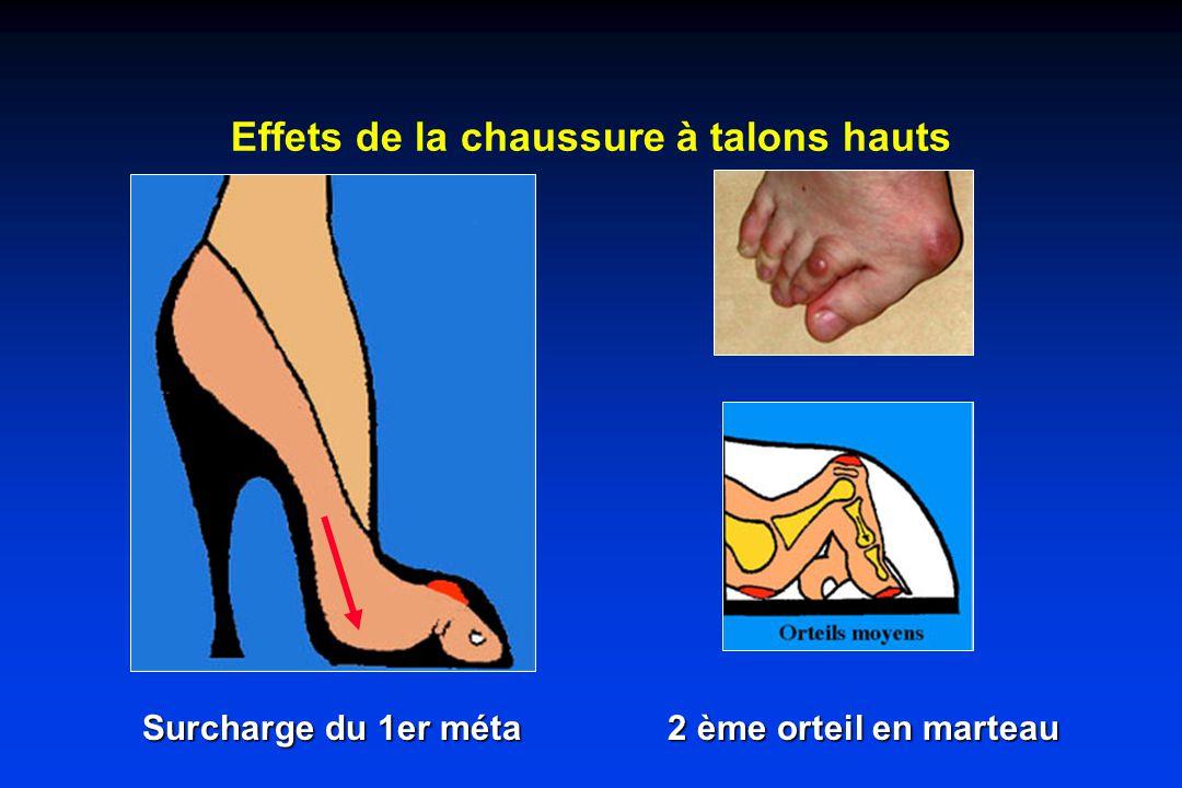 Effets de la chaussure à talons hauts