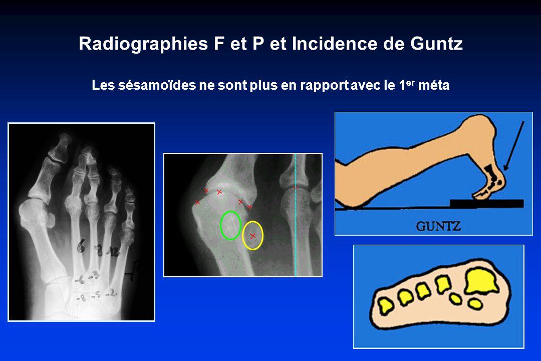 Radiographies F et P et Incidence de Guntz Les sésamoïdes ne sont plus en rapport avec le 1er méta
