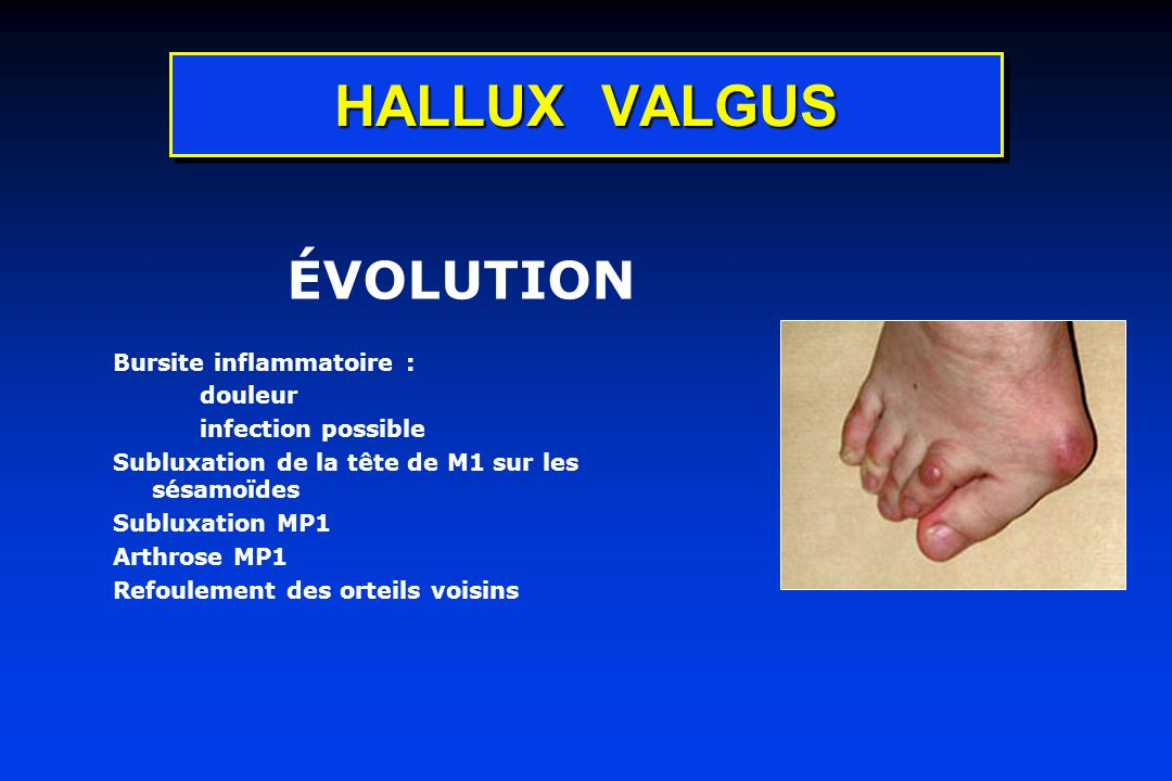 HALLUX VALGUS ÉVOLUTION Bursite inflammatoire : douleur