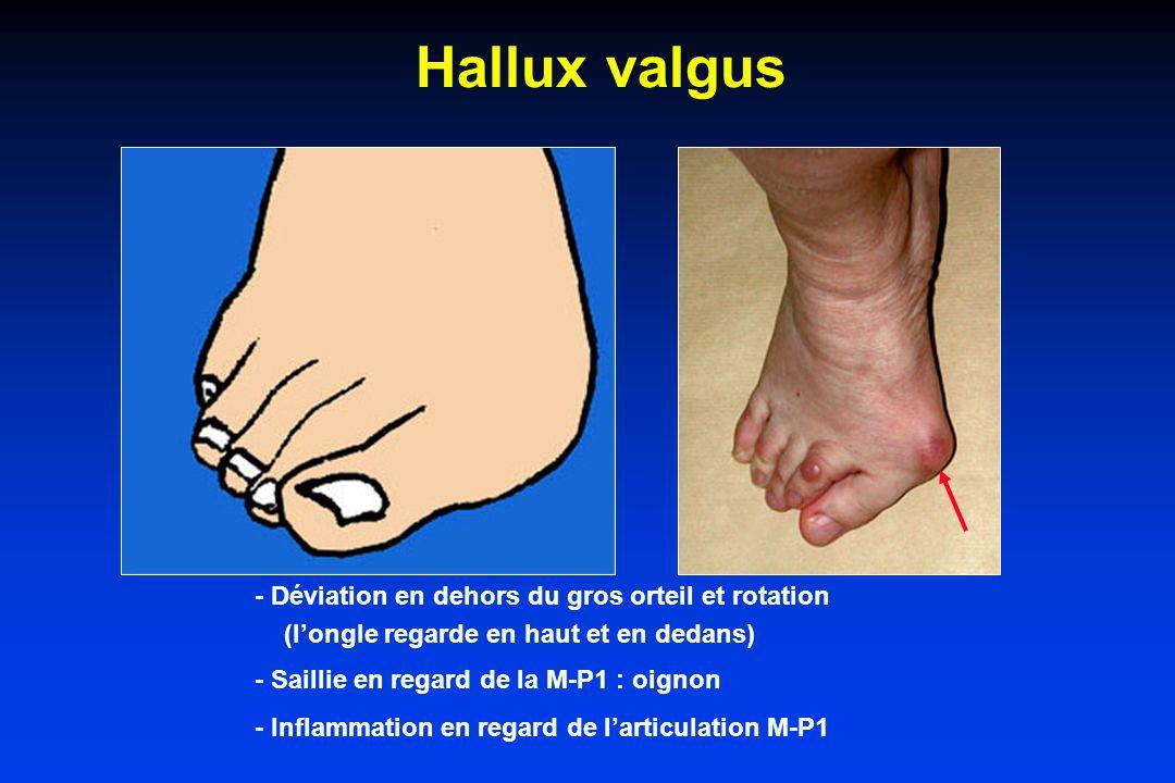 Hallux valgus - Déviation en dehors du gros orteil et rotation