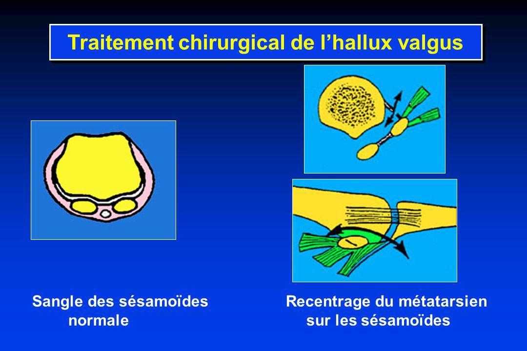 Traitement chirurgical de l'hallux valgus