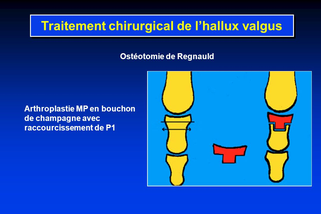 Ostéotomie de Regnauld