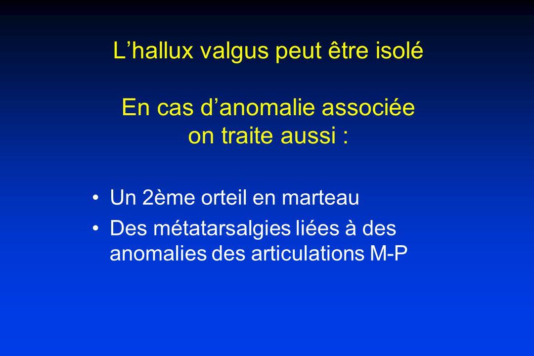 L'hallux valgus peut être isolé En cas d'anomalie associée on traite aussi :