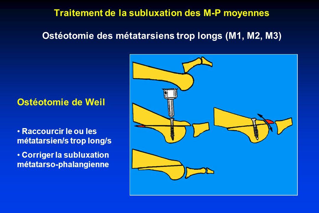 Traitement de la subluxation des M-P moyennes Ostéotomie des métatarsiens trop longs (M1, M2, M3)