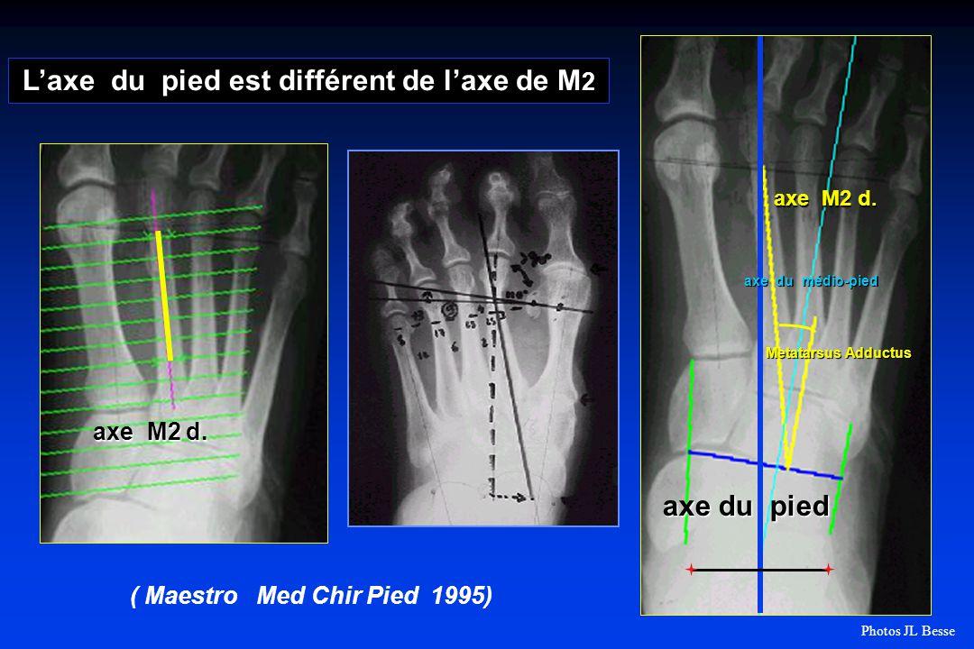 L'axe du pied est différent de l'axe de M2