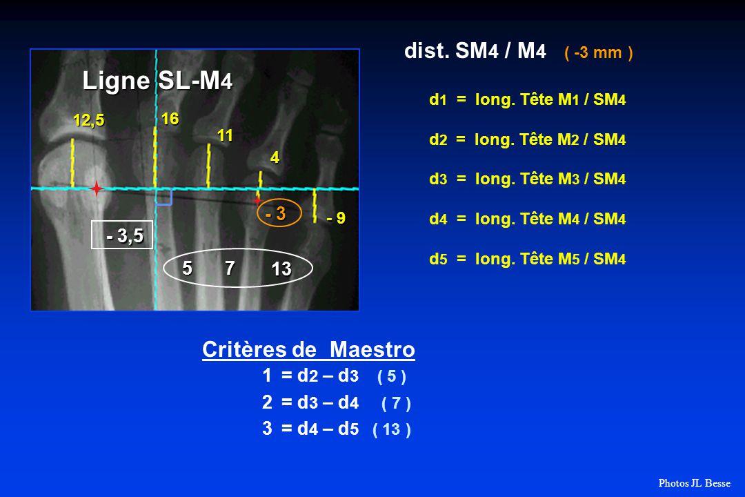 Ligne SL-M4 dist. SM4 / M4 ( -3 mm ) Critères de Maestro - 3,5 5 7 13
