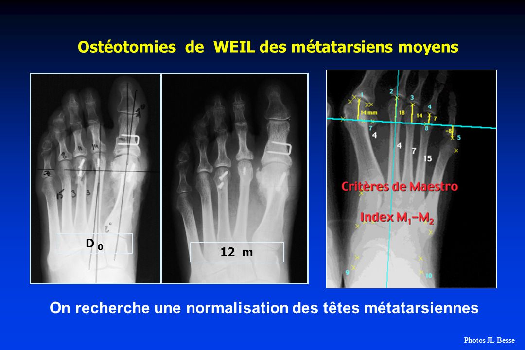 Ostéotomies de WEIL des métatarsiens moyens