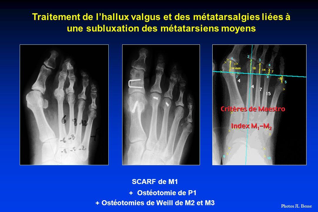 + Ostéotomies de Weill de M2 et M3