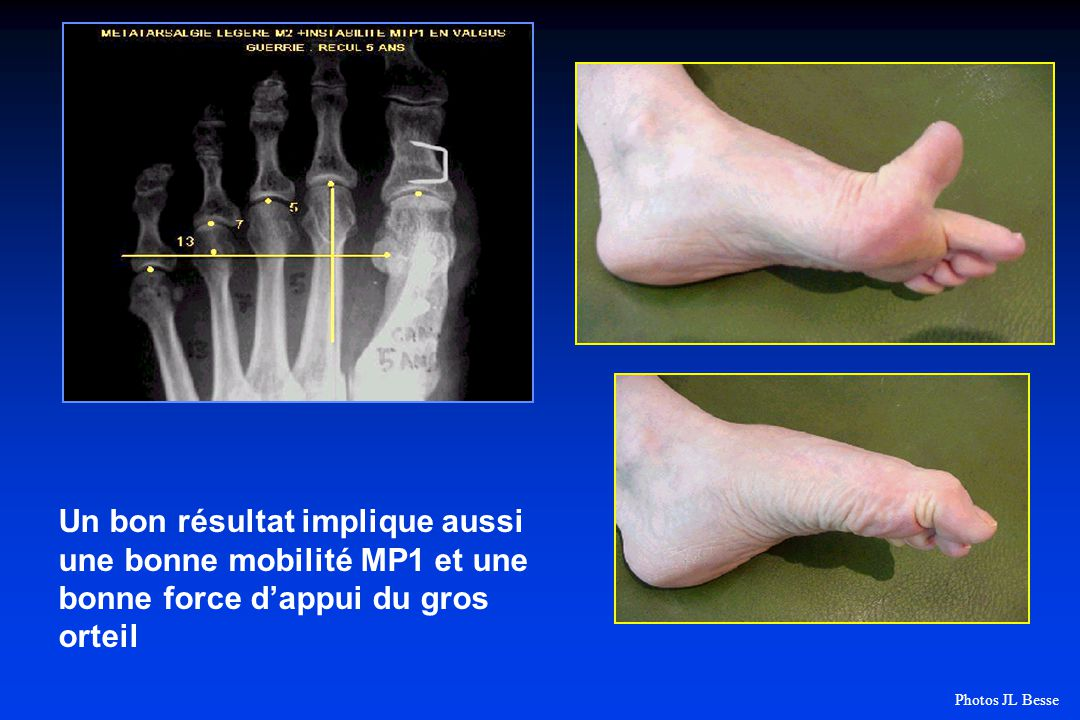 Un bon résultat implique aussi une bonne mobilité MP1 et une bonne force d'appui du gros orteil