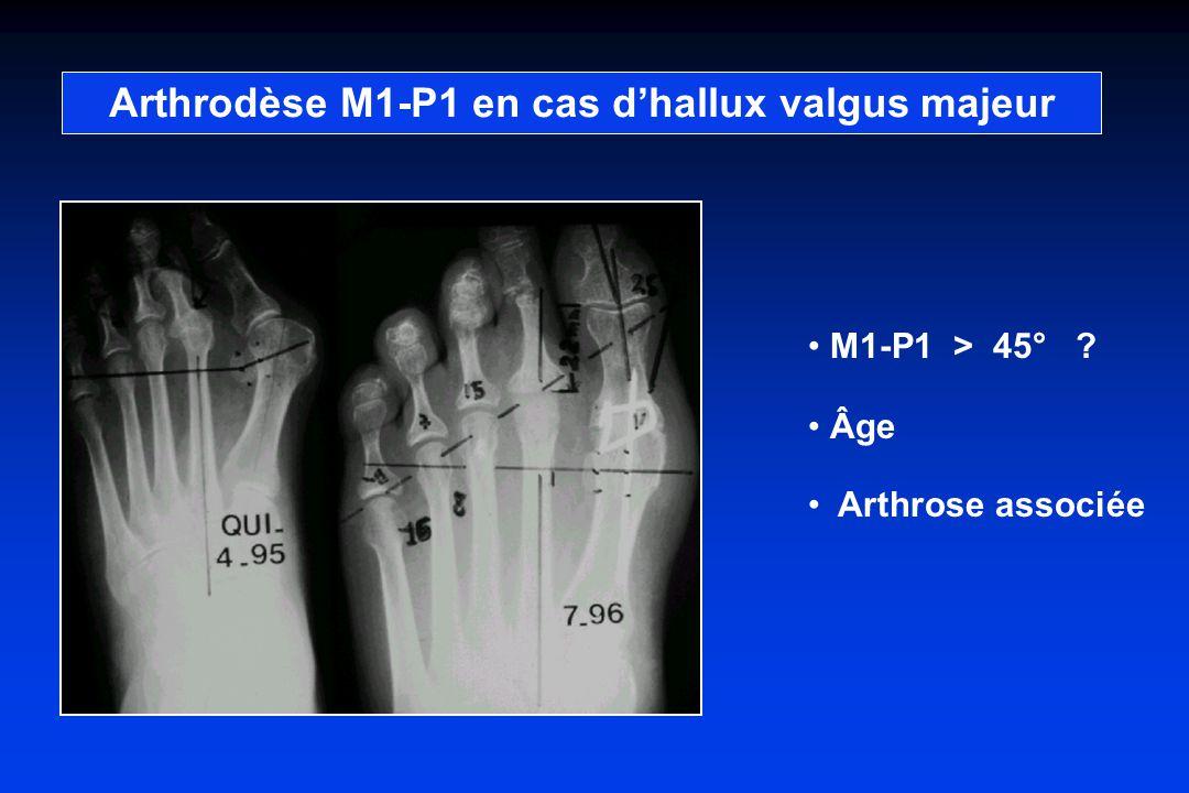 Arthrodèse M1-P1 en cas d'hallux valgus majeur
