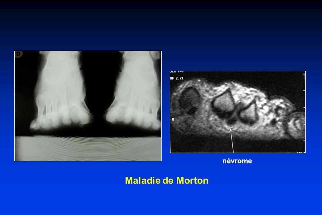 névrome Maladie de Morton