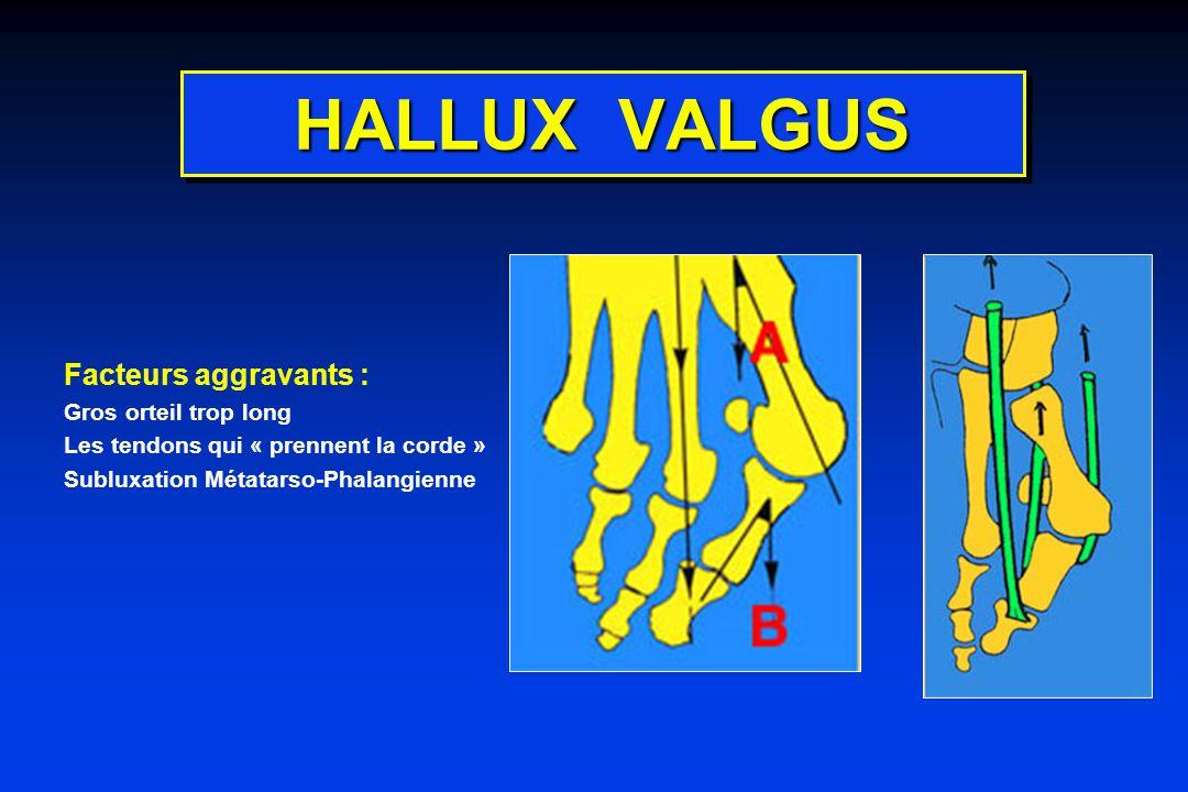 HALLUX VALGUS Facteurs aggravants : Gros orteil trop long