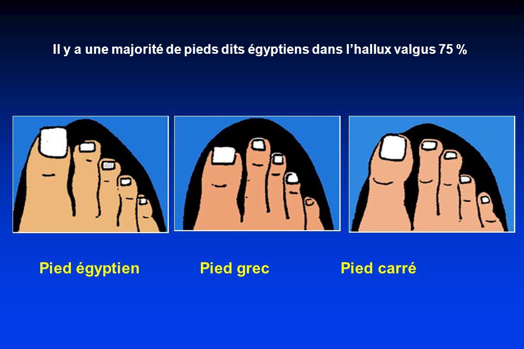 Il y a une majorité de pieds dits égyptiens dans l'hallux valgus 75 %