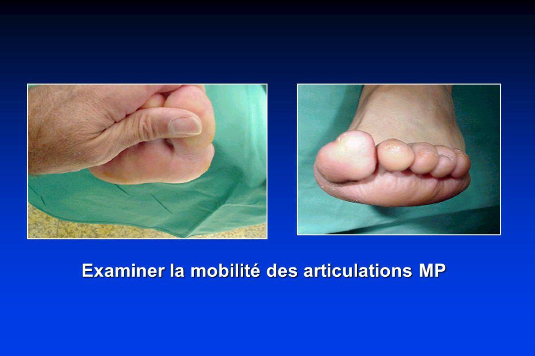 Examiner la mobilité des articulations MP