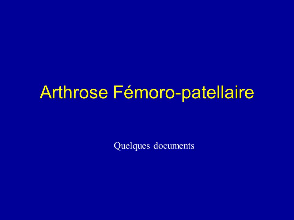 Arthrose Fémoro-patellaire