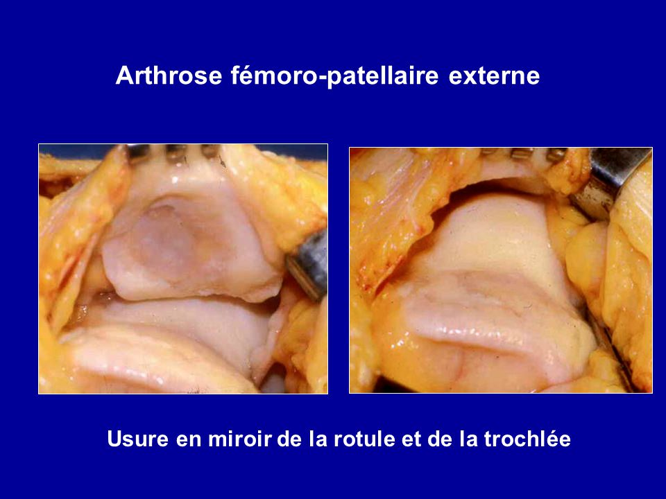Arthrose fémoro-patellaire externe