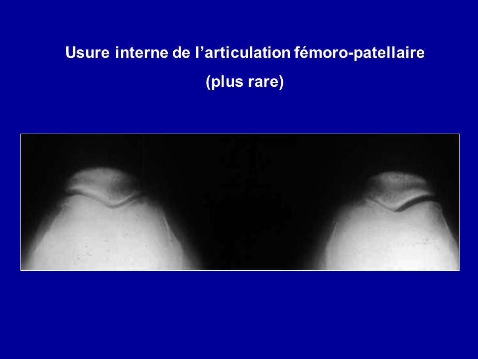 Usure interne de l'articulation fémoro-patellaire